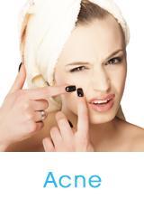 acne-service