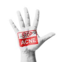Stop Acne!