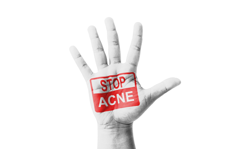 Tips to Reduce Acne Lesions Quicker