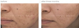 acne-with-post-inflammatory-hyperpigmentation
