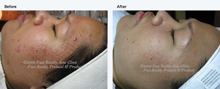 Inflamed Acne is treated at Skin and Acne Specialist
