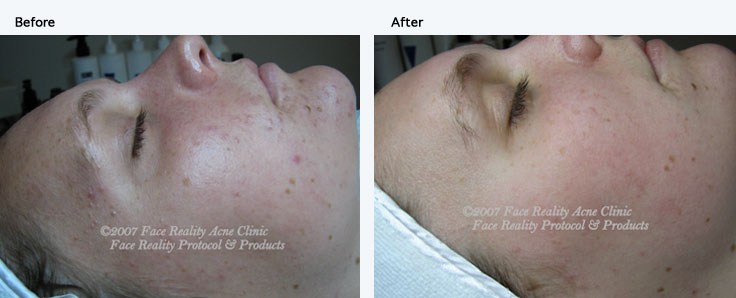 Skin and Acne Specialist provides results for non-inflamed acne patient.